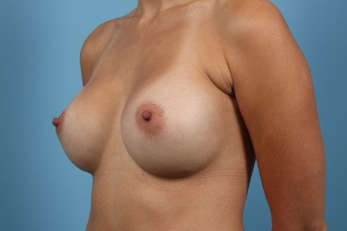 Age 32 Female Breast Augmentation Case 130 Before/After