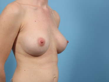 Age 34 Female Breast Augmentation Case 170 Before/After