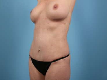 Age 40 Female Abdominoplasty Case 190 Before/After