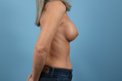 1965-post-4-breast-augmentation-before-and-after-web