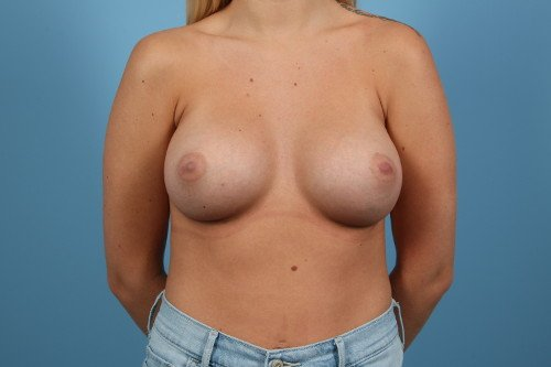 214-post-1-breast-augmentation-before-and-after-web