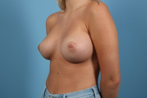 214-post-3-breast-augmentation-before-and-after-web