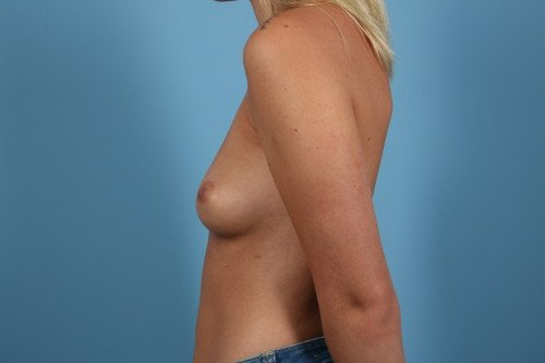 214-pre-2-breast-augmentation-before-and-after-web