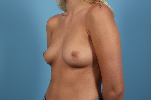 214-pre-3-breast-augmentation-before-and-after-web