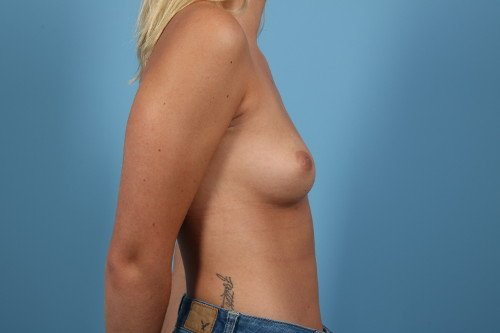214-pre-4-breast-augmentation-before-and-after-web