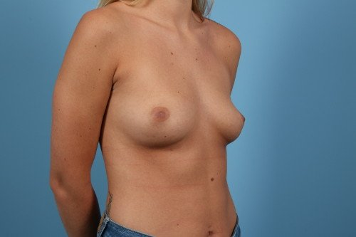 214-pre-5-breast-augmentation-before-and-after-web