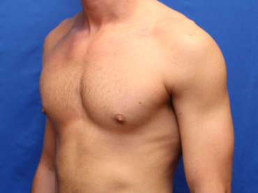 Age 21 Male Gynecomastia Case 2144 Before/After