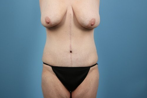 237-post-1-weight-loss-makeover-before-and-after-web