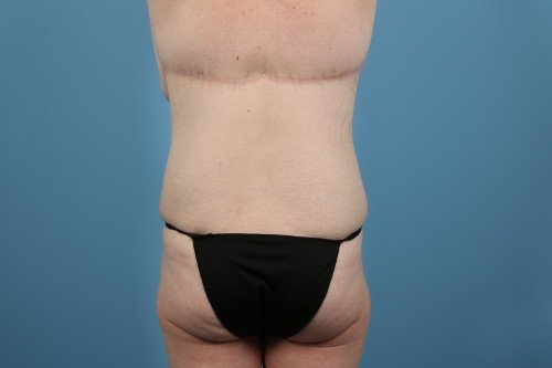 237-post-2-weight-loss-makeover-before-and-after-web