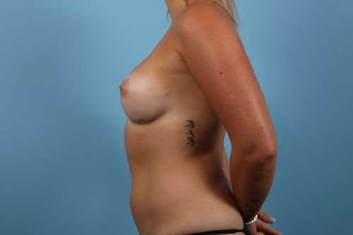 242-post-2-breast-augmentation-before-and-after-web