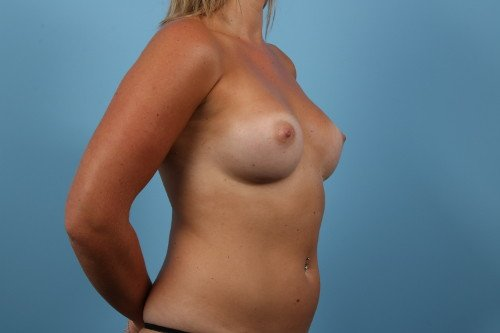 242-post-3-breast-augmentation-before-and-after-web