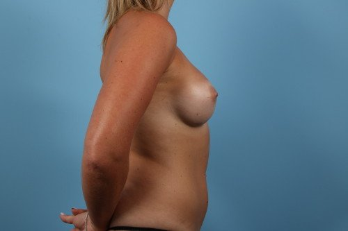 242-post-4-breast-augmentation-before-and-after-web