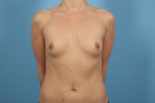 242-pre-2-breast-augmentation-before-and-after-web