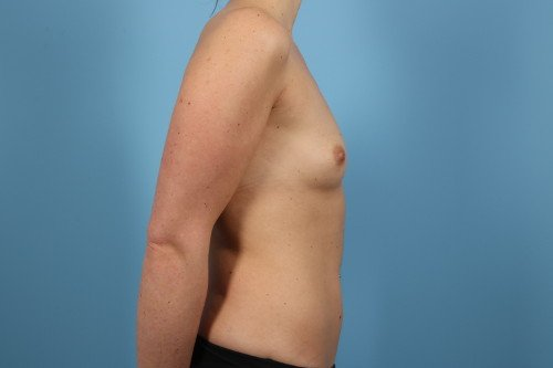 242-pre-4-breast-augmentation-before-and-after-web