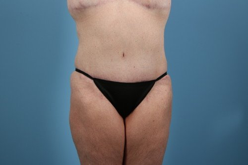 31-post-1-abdominoplasty-before-and-after-web
