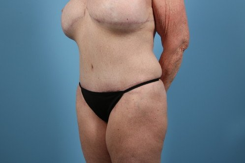 31-post-3-abdominoplasty-before-and-after-web