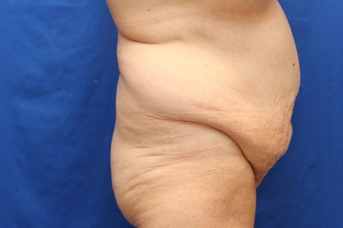 31-pre-4-abdominoplasty-before-and-after-web