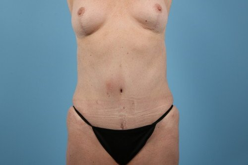 358-post-1-abdominoplasty-before-and-after-web