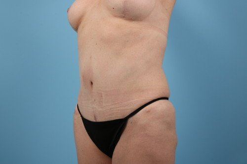 358-post-3-abdominoplasty-before-and-after-web