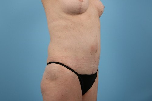 358-post-5-abdominoplasty-before-and-after-web