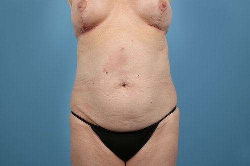 358-pre-1-abdominoplasty-before-and-after-web
