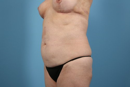 358-pre-3-abdominoplasty-before-and-after-web