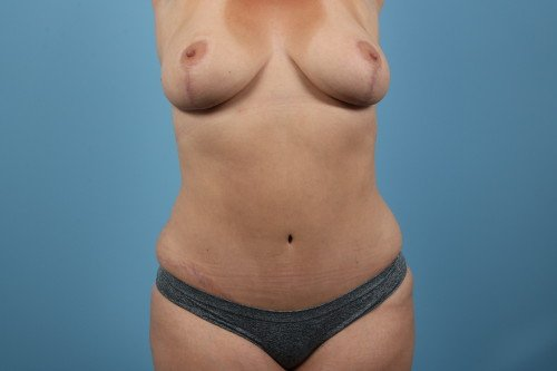414-post-1-liposuction-before-and-after-web