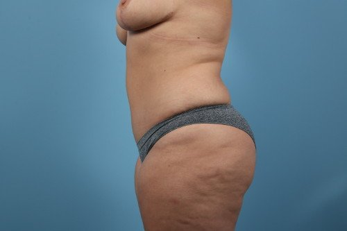 414-post-2-liposuction-before-and-after-web