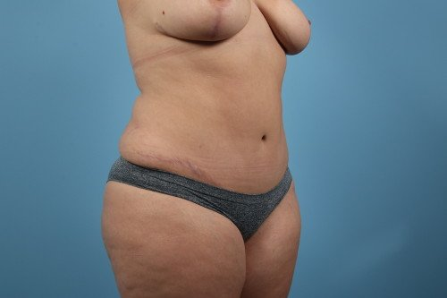 414-post-5-liposuction-before-and-after-web