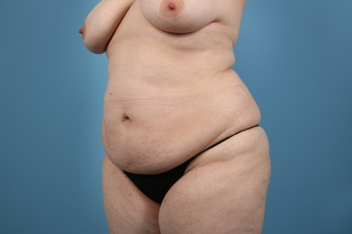 414-pre-3-liposuction-before-and-after-web