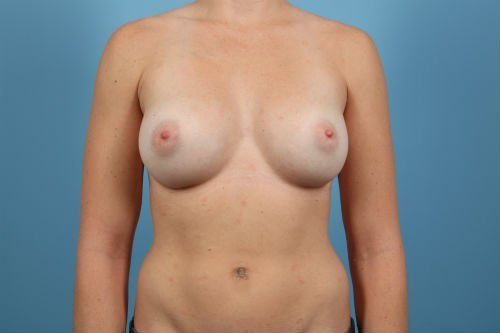 57Post1-charlotte-breast-implant-exchange-before-after-web