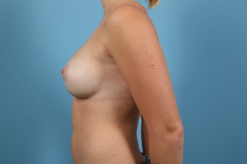 57Post2-charlotte-breast-implant-exchange-before-after-web