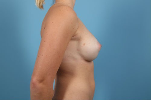57Post4-charlotte-breast-implant-exchange-before-after-web