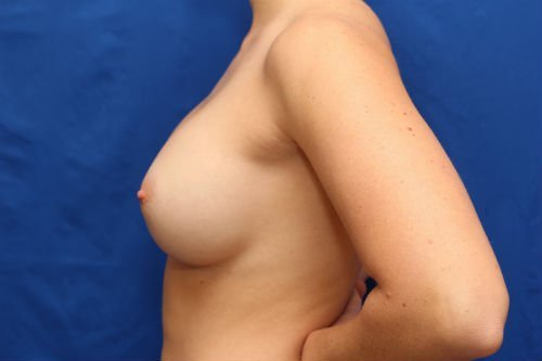 57Pre2-charlotte-breast-implant-exchange-before-after-web