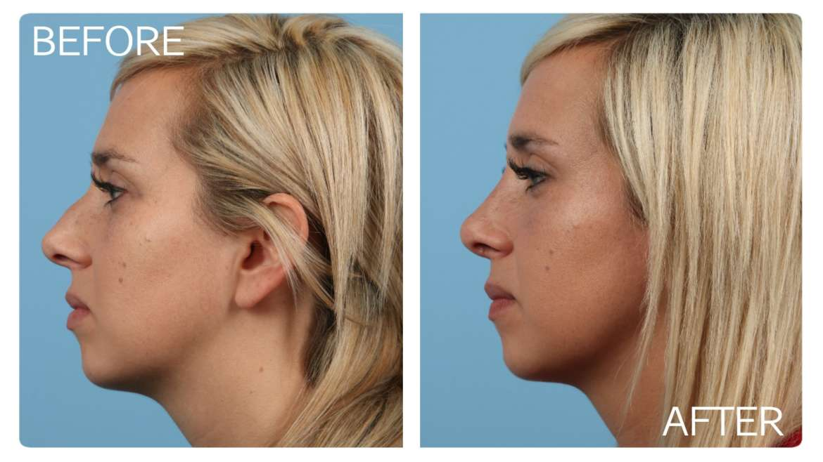 Age 29 Female Rhinoplasty Case 905 Before/After