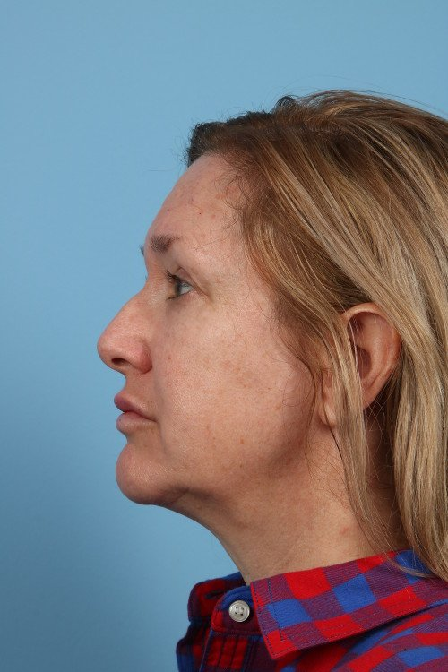 91-post-2-blepharoplasty-before-and-after-web