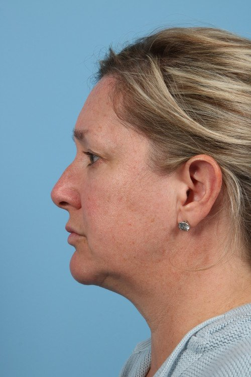 91-pre-2-blepharoplasty-before-and-after-web