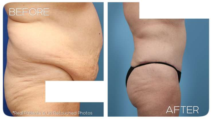 Age 67 Female Abdominoplasty Case 31 Before/After