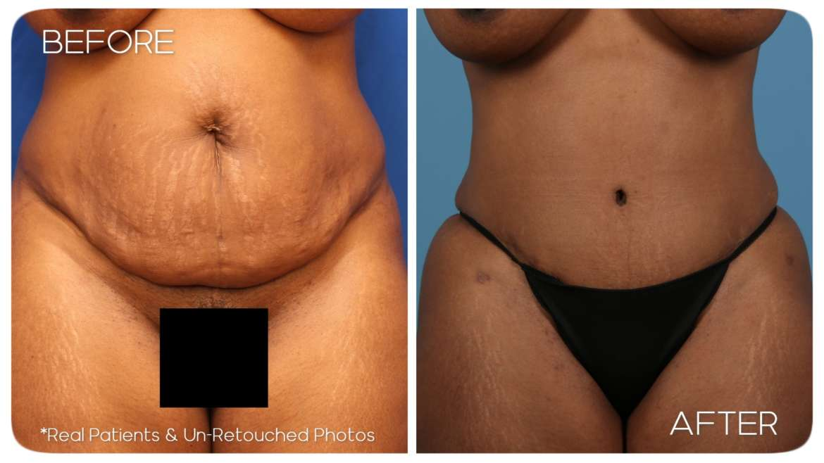 Age 40 Abdominoplasty BBL Case 18 Before/After