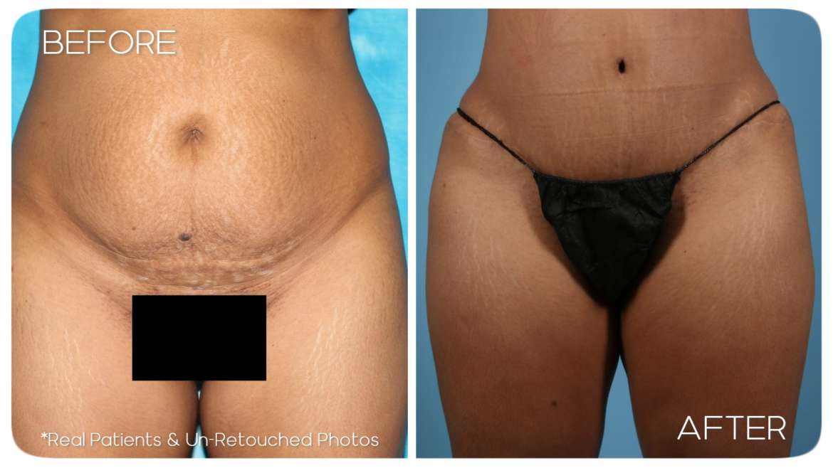 Age 46 Female Abdominoplasty Case 58 Before/After