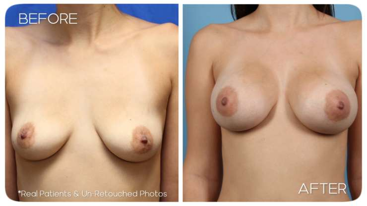 Age 24 Female Breast Augmentation Case 70 Before/After