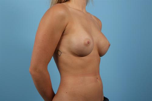 Age 25 Female Breast Augmentation Case 1 Before/After