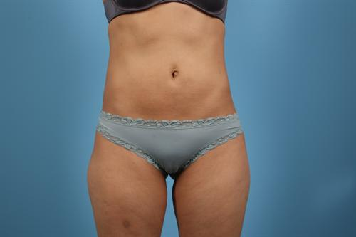 Liposuction Case 1 Before/After