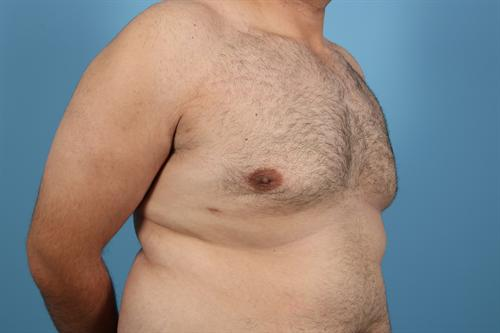 Age 27 Male Gynecomastia Case 1 Before/After