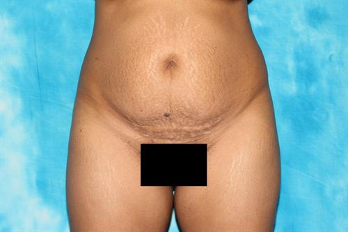charlotte-nc-tummy-tuck-surgery-case-58-before-1