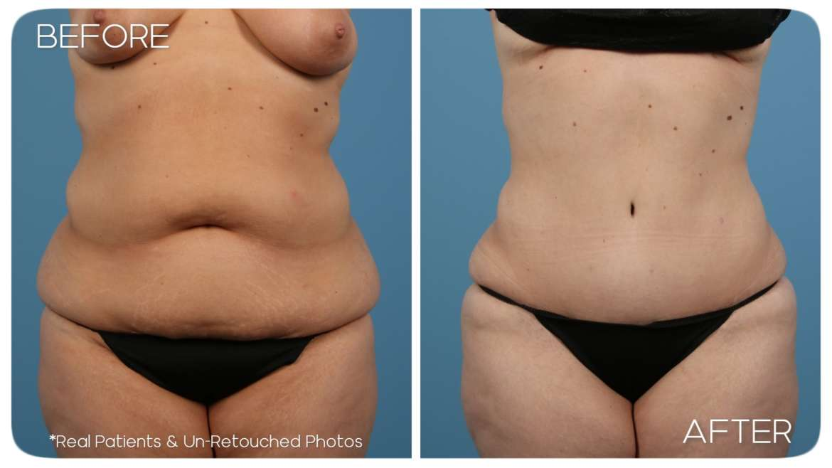 Age 35 Female Tummy Tuck Lipo Abdomen and Hip Rolls Case 231 Before/After
