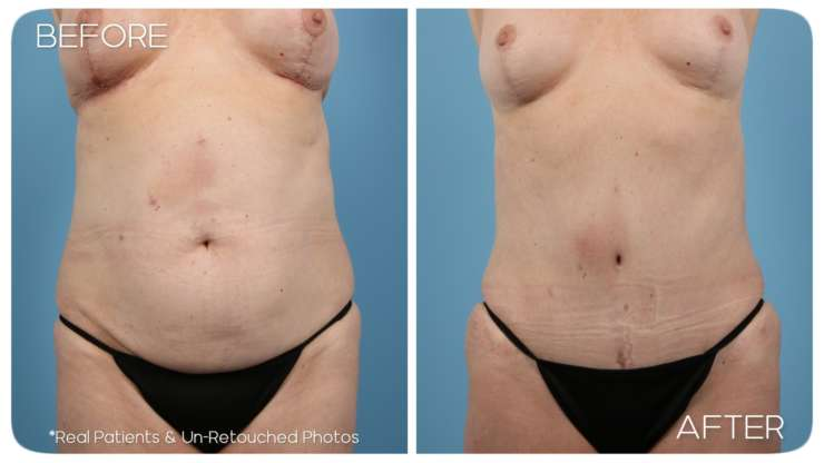 Age 59 Abdominoplasty Mastopexy Case 358 Before/After