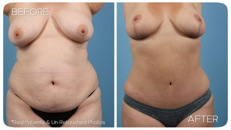 Age 35 Abdominoplasty Liposuction Case 414 Before/After