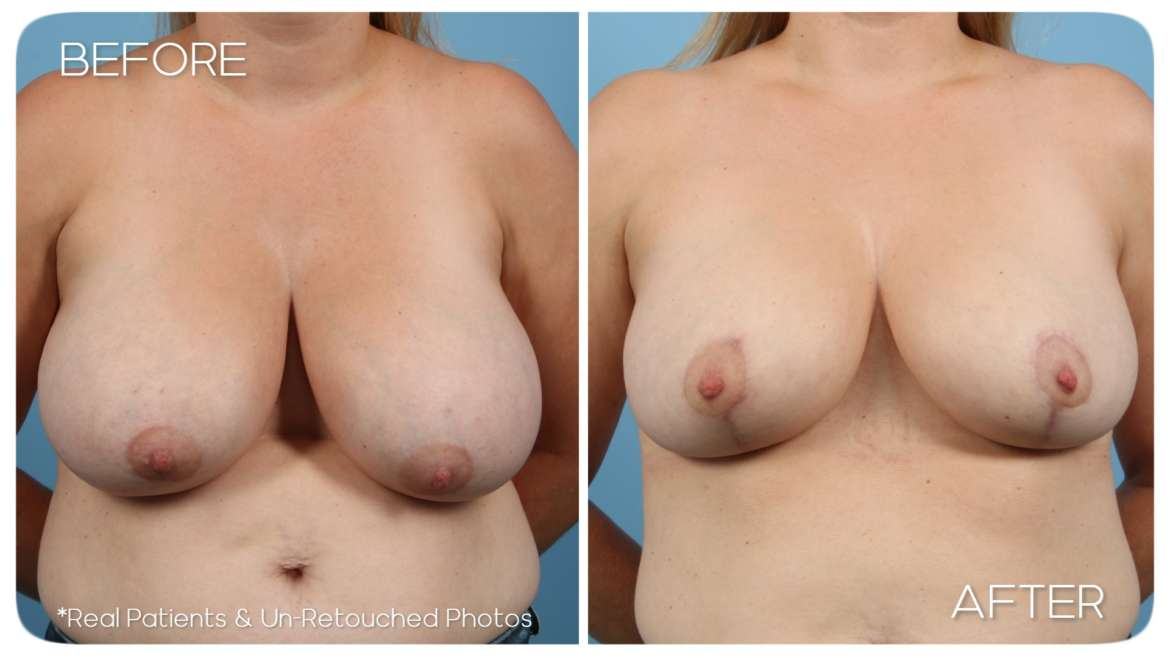 Age 44 Female Breast Reduction, Liposuction Case 557 Before/After