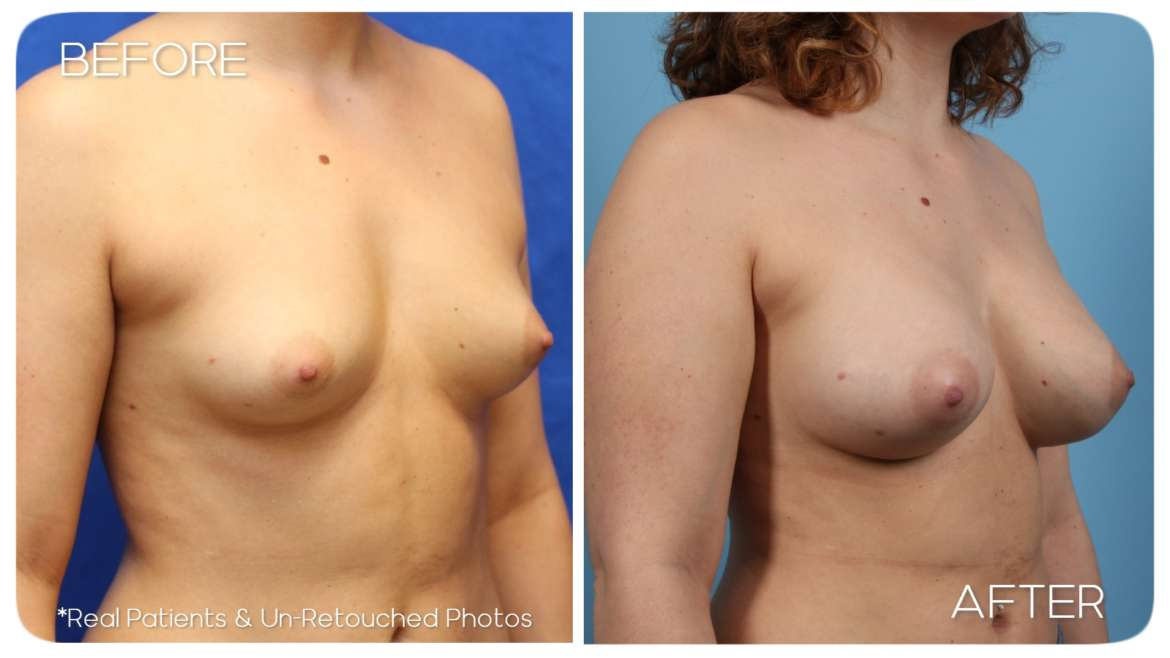 Age 23 Breast Augmentation Case 63 Before/After